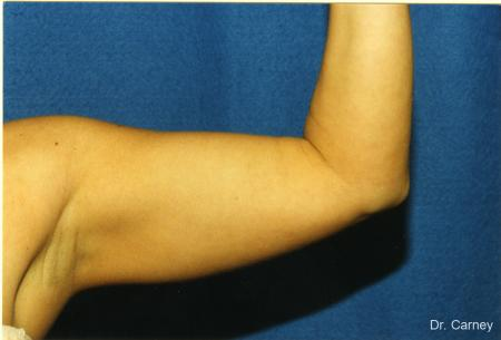 Virginia Beach Brachioplasty 1141 - Before Image