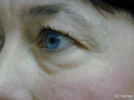 Virginia Beach Eyelid Lift 1139 - Before Image 2