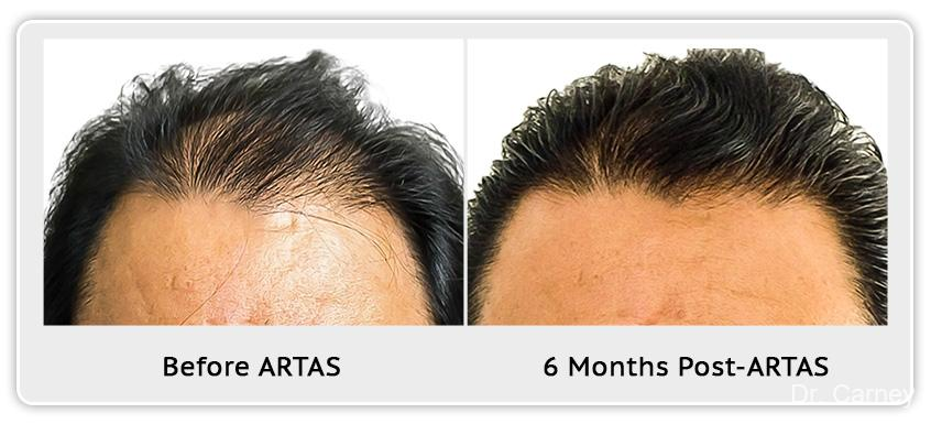 Hair Transplantation: Patient 10 - Before and After Image
