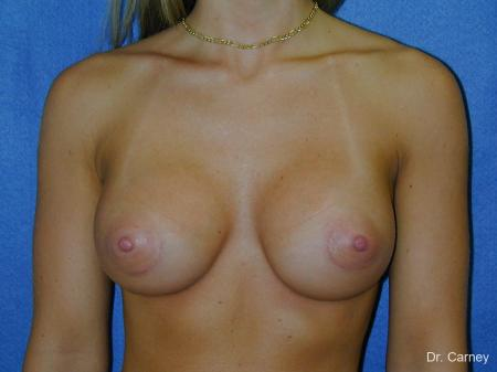 Virginia Beach Breast Augmentation 1193 -  After Image 1