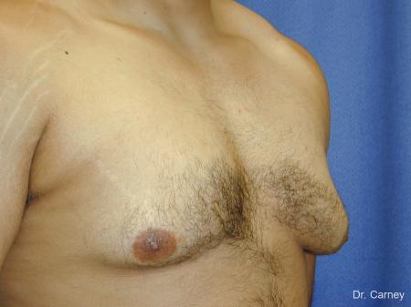 Virginia Beach Gynecomastia 1255 - Before Image 3