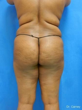 Brazilian Butt Lift: Patient 4 - Before Image 3