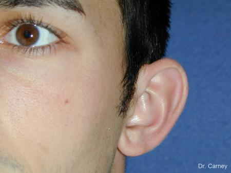 Virginia Beach Otoplasty Earlobe Repair 1222 - Before Image 4