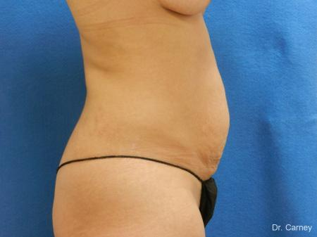 Abdominoplasty: Patient 2 - Before Image 1