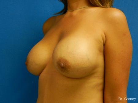Virginia Beach Breast Augmentation 1860 -  After Image 4