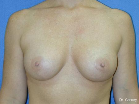 Virginia Beach Breast Augmentation 1081 -  After Image 3