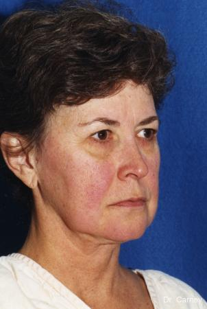 Virginia Beach Laser Skin Resurfacing - Face 1259 - Before Image