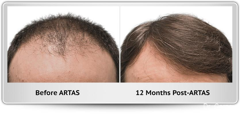 Hair Transplantation: Patient 3 - Before and After Image