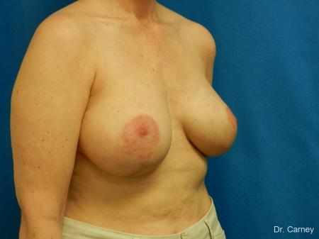 Virginia Beach Breast Lift 1185 -  After Image 2