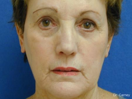 Virginia Beach Facelift 1133 - Before Image 2