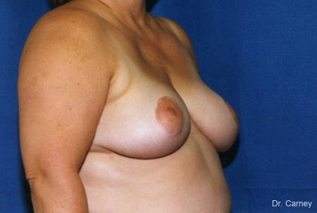 Virginia Beach Breast Lift 1188 -  After Image 1