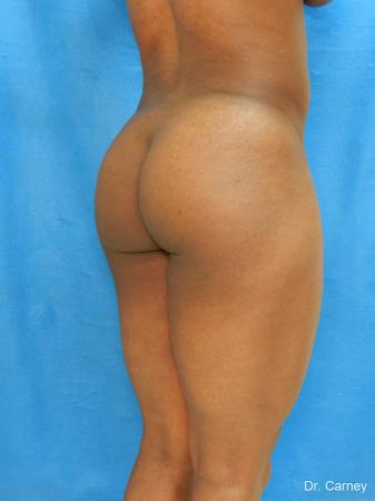 Brazilian Butt Lift: Patient 3 - Before Image 3