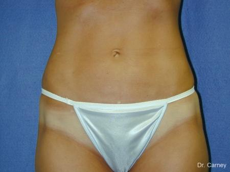 Virginia Beach Liposuction 1282 - After Image