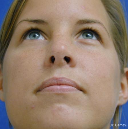 Virginia Beach Rhinoplasty 1218 -  After Image 2