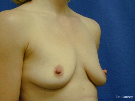 Virginia Beach Combo Procedures Breast 1099 - Before and After Image 3