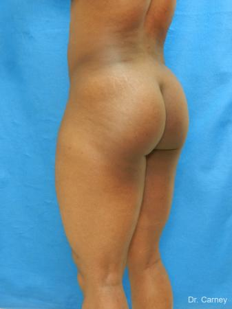 Brazilian Butt Lift: Patient 3 - Before Image 4