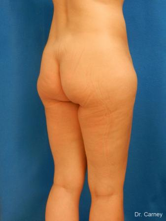 Brazilian Butt Lift: Patient 7 - Before Image 2