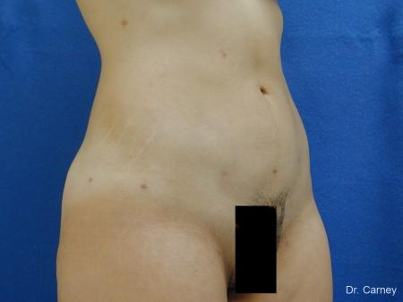 Virginia Beach Liposuction 1276 -  After Image 2