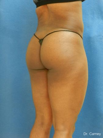Brazilian Butt Lift: Patient 3 - After Image 3