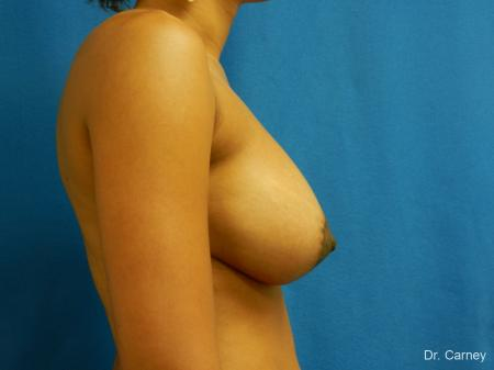 Virginia Beach Combo Procedure Breast 1861 -  After Image 3