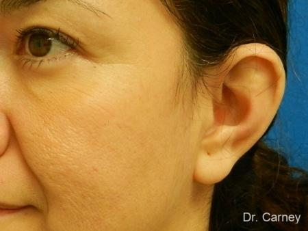 Virginia Beach Otoplasty Earlobe Repair 1225 - Before and After Image 4