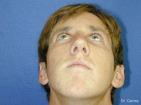 Virginia Beach Rhinoplasty 1219 -  After Image 5