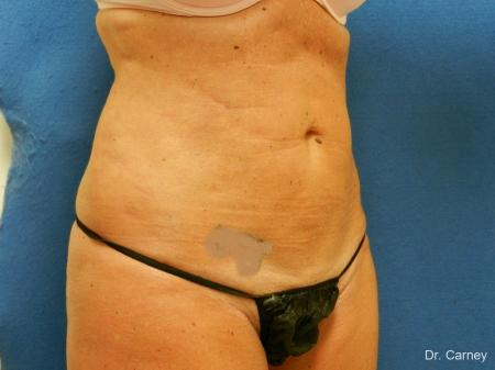 Virginia Beach Liposuction 1279 - After Image