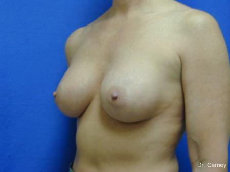 Virginia Beach Breast Augmentation 1214 -  After Image 4