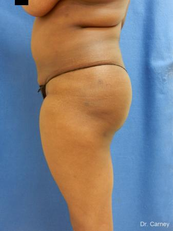 Brazilian Butt Lift: Patient 5 - After Image