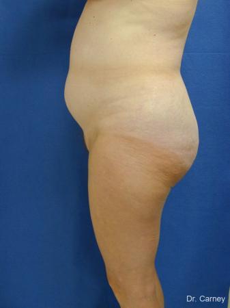 Virginia Beach Liposuction 1213 - Before Image 3