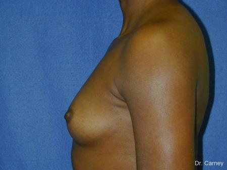 Virginia Beach Breast Augmentation 1085 - Before Image