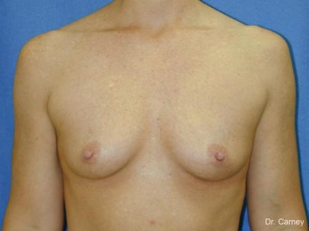 Virginia Beach Breast Augmentation 1081 - Before and After Image 3