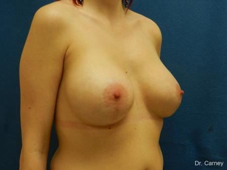 Virginia Beach Combo Procedures Breast 1182 -  After Image 2