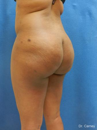 Brazilian Butt Lift: Patient 6 - After Image 2