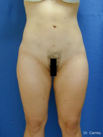 Virginia Beach Liposuction 1276 -  After Image 4