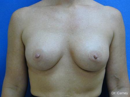 Virginia Beach Breast Augmentation 1214 -  After Image 1
