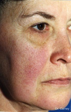 Virginia Beach Facelift 1134 - Before and After 3