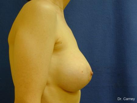 Virginia Beach Breast Augmentation 1088 -  After Image 1
