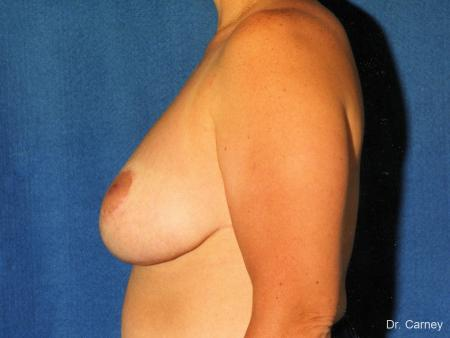 Virginia Beach Breast Reduction 1229 -  After Image 2