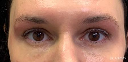 Microblading: Patient 1 - Before Image