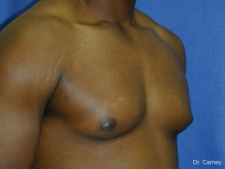 Virginia Beach Gynecomastia 1226 - Before Image 2