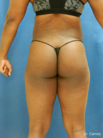 Brazilian Butt Lift: Patient 3 - After Image 5