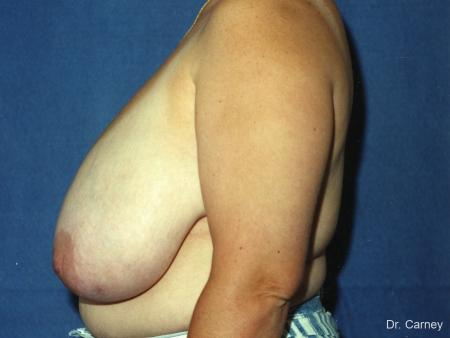 Virginia Beach Breast Reduction 1229 - Before and After Image 2