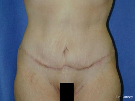 Virginia Beach Tummy Tuck 1249 -  After Image 2