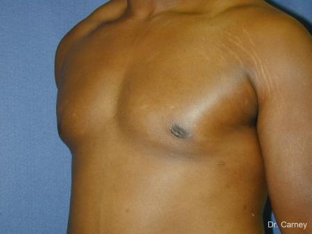 Virginia Beach Gynecomastia 1226 -  After Image 3
