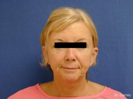 Virginia Beach Brow Lift 1266 - Before and After Image 5