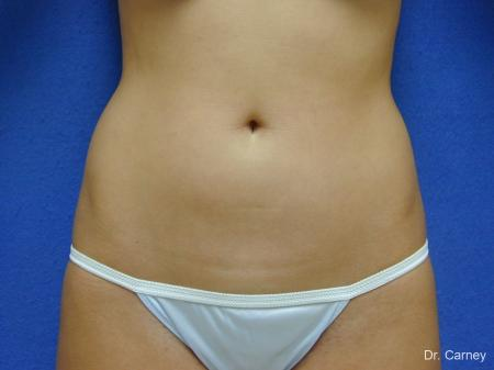 Virginia Beach Liposuction 1277 - Before Image