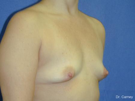 Virginia Beach Breast Augmentation 1083 - Before Image 2