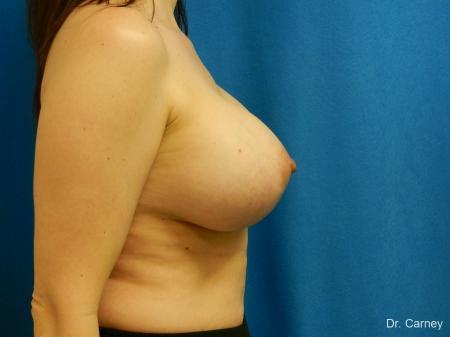 Virginia Beach Combo Procedure Breast 1184 -  After Image 3