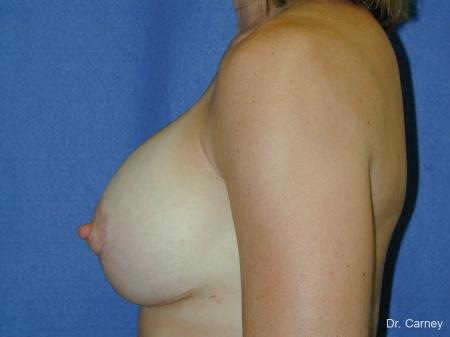 Virginia Beach Combo Procedures Breast 1099 -  After Image 2